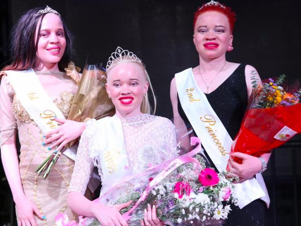 au-zimbabwe-concours-miss-albinos-contre-les-prejuges-violence_width1024